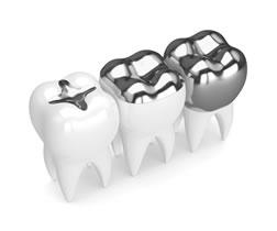 La separazione dell'amalgama nello studio dentisitico